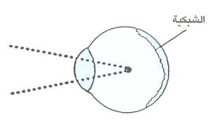 قِصر البصر