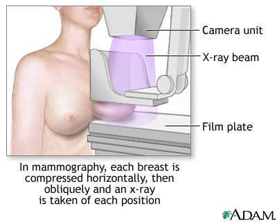 http://www.baytalhaq.com/images/articles/mammogram-picture.jpg